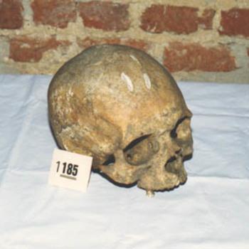 """Schedel """"Menselijke schedel"""""""